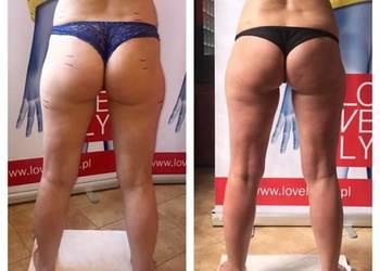 Szybki sposób na pozbycie się cellulitu