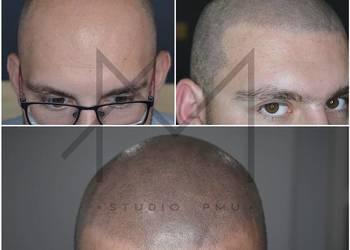 Mikropigmentacja Skóry Głowy Włosów Zagęszczanie Włosów Łódź