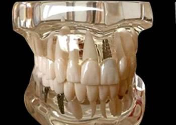 Model poglądowy implantologiczny